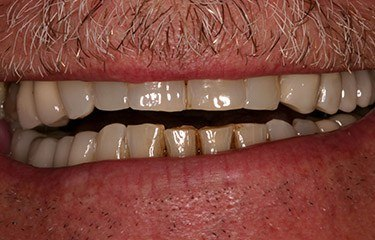 Ron's worn and damaged smile before treatment