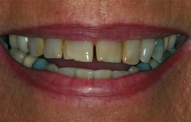Al's teeth with gap in front before treatment